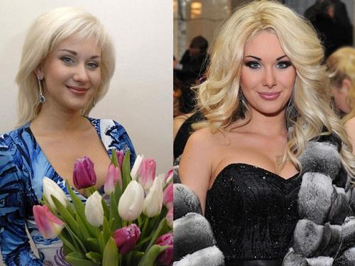 камалия фото до и после пластики
